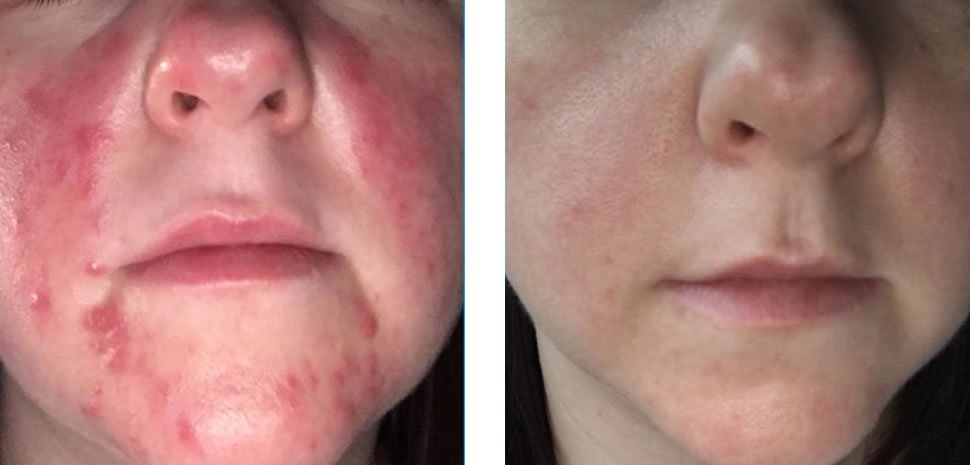 Acne Treatment Before and After Bristol