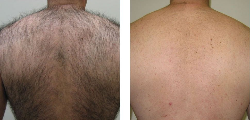 Hair Removal Before and After Bristol