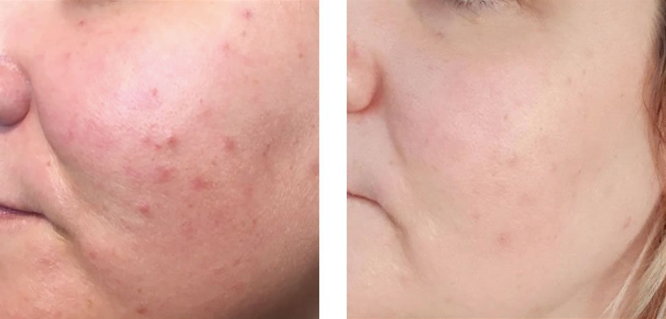 Illumi Facial Before and After Bristol
