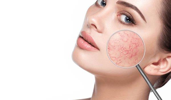 Laser Vascular Treatment Bristol