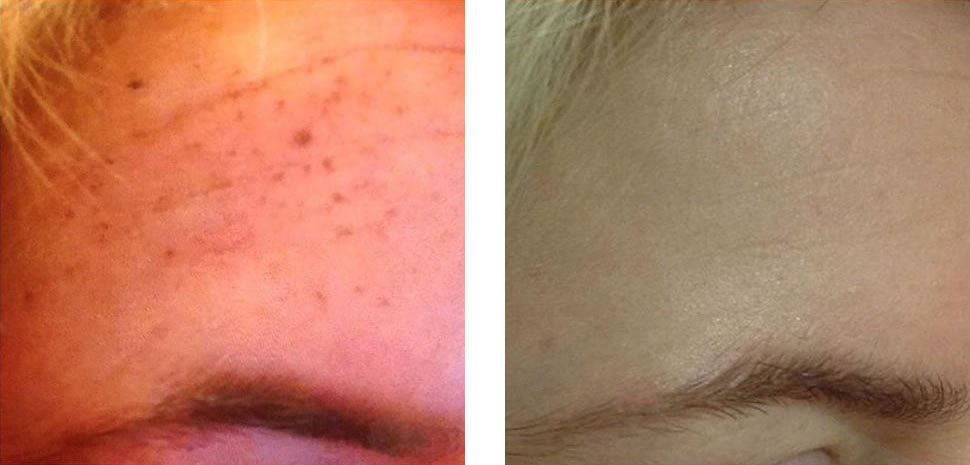 Pigmentation Removal Before and After Bristol