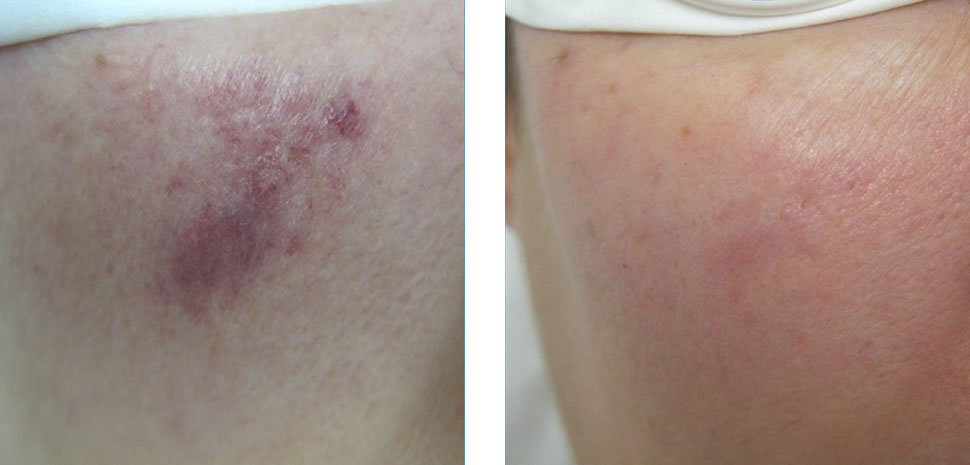 Port Wine Stain Treatment Before and After Bristol