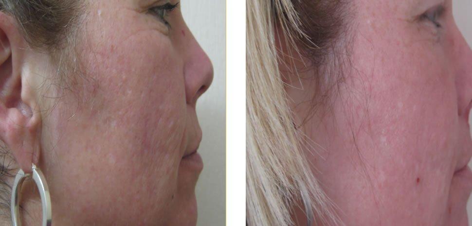 Skin Rejuvenation Before and After Bristol