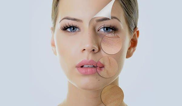 Skin Rejuvenation Bristol