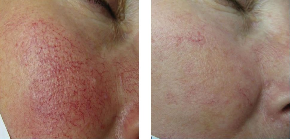 Vascular Treatment Before and After Bristol